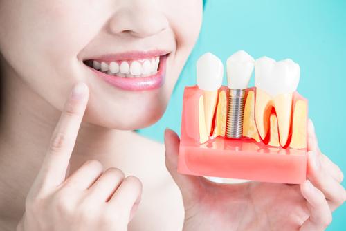 Implants dentaires | Dental implants