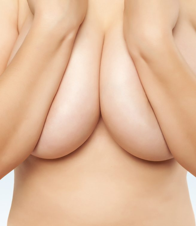 Réduction mammaire | Breast reduction